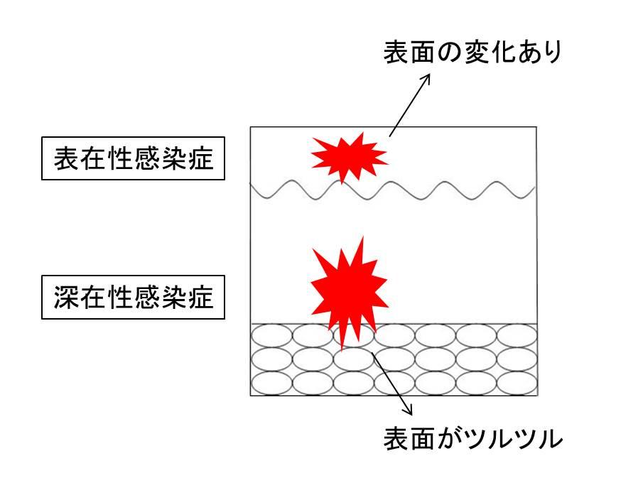 医師国家試験感染症の皮疹の図