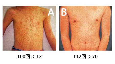 ウイルス性発疹症の鑑別の図