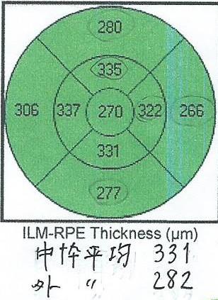 f:id:white-ivy:20210227111632j:plain