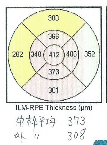 f:id:white-ivy:20210228105816j:plain
