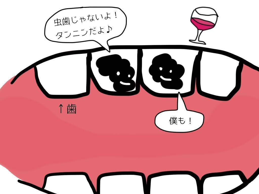 ワインと歯の汚れ