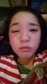 愛仁夏 顔の腫れ11月2016年