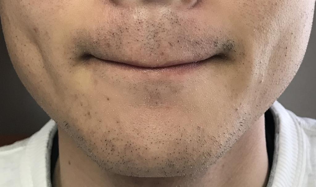 ヒゲ脱毛1回目5日経過鼻下・アゴ
