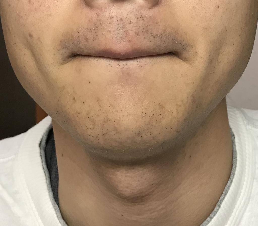 ヒゲ脱毛1回目8日経過鼻下・アゴ