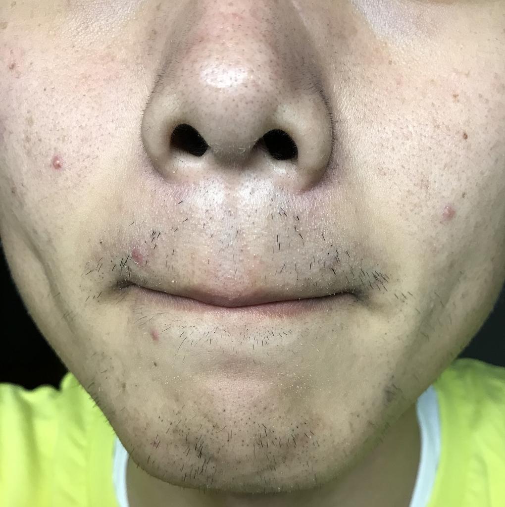 ヒゲ脱毛2回目38日経過鼻下・アゴ