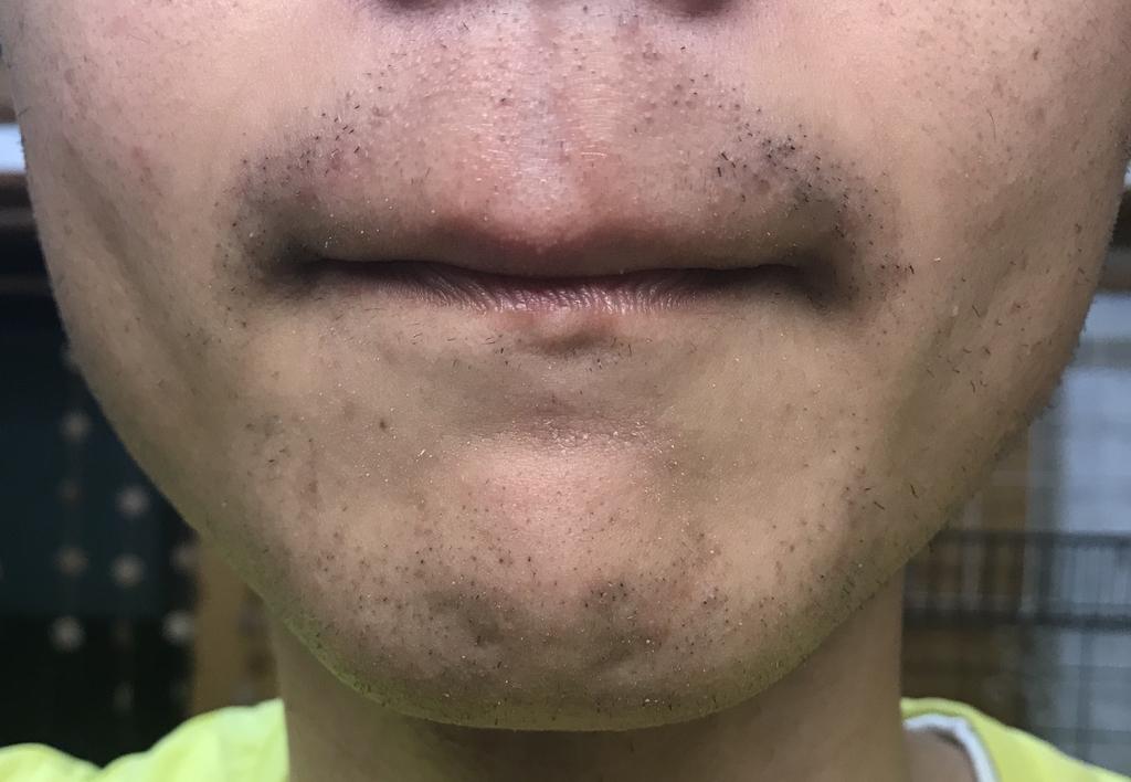 ヒゲ脱毛3回目10日経過鼻下・アゴ
