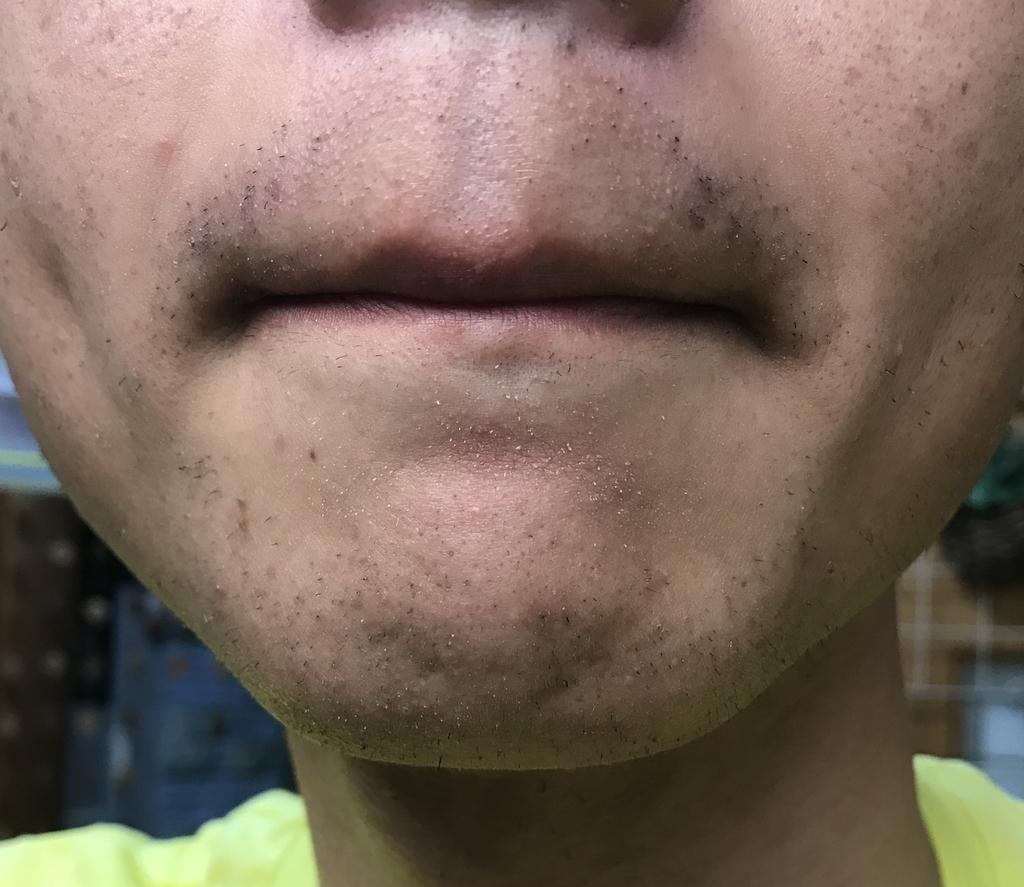 ヒゲ脱毛3回目14日経過鼻下・アゴ