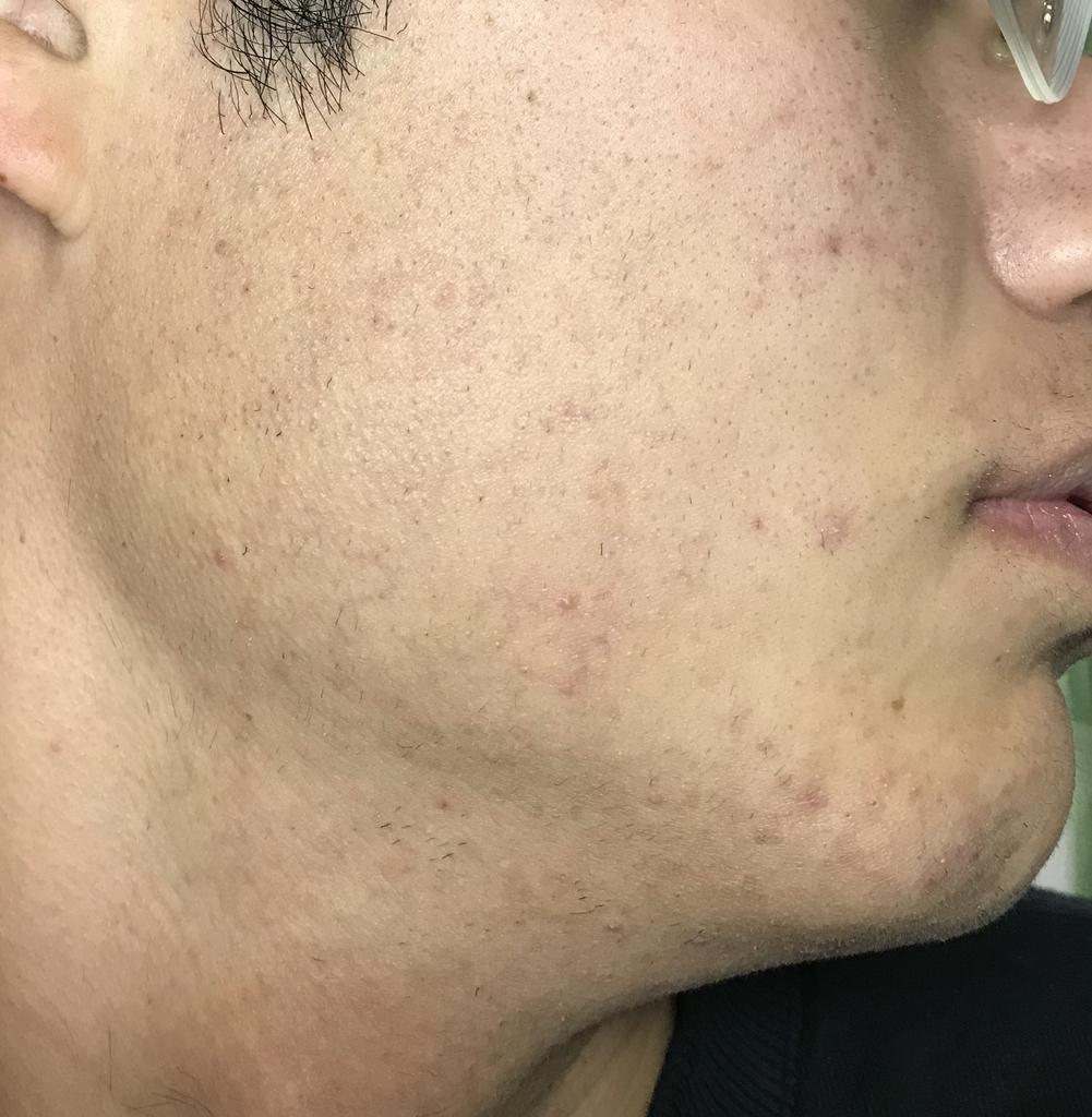 ヒゲ脱毛5回目21日経過鼻下・アゴ