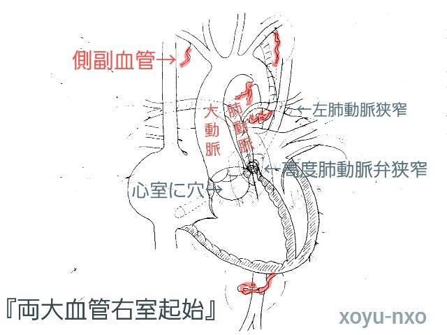 f:id:xoyu-nxo:20210725142632j:image