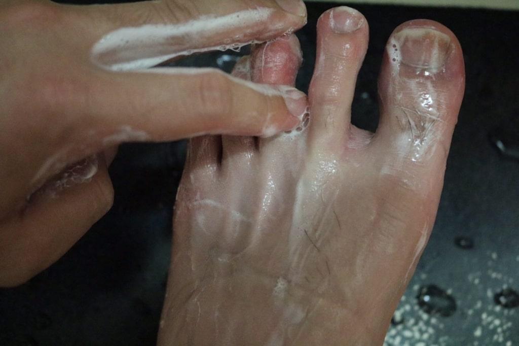 薬用石鹸ミューズ水虫効果