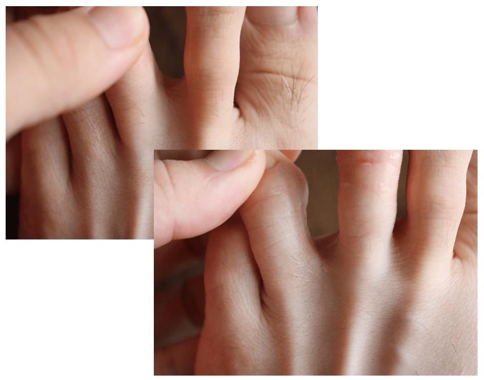 【水虫症状画像】水虫治療を始めてから現在までの写真を公開