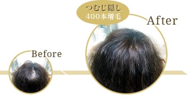 f:id:yagikatsuji:20160707155753j:plain
