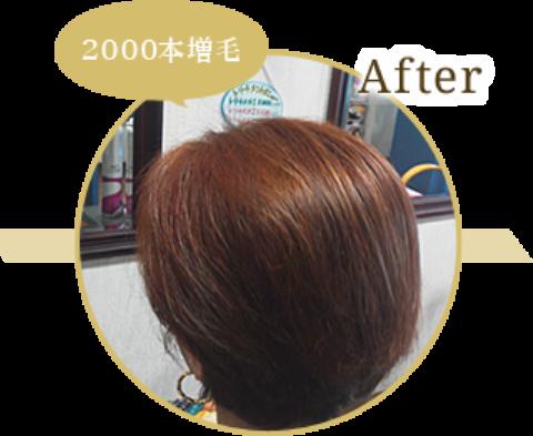 f:id:yagikatsuji:20160707160613p:plain