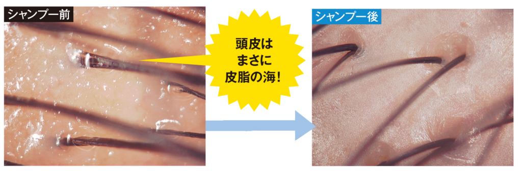 f:id:yagikatsuji:20160722194950j:plain