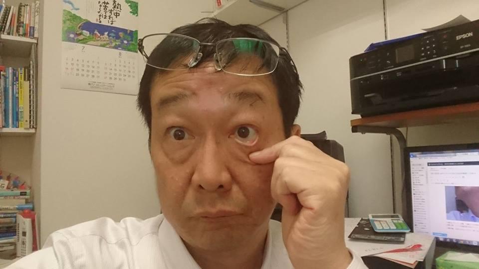 f:id:yagikatsuji:20170718133520j:plain