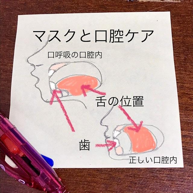 f:id:yakuzenntonn:20210408075923j:plain