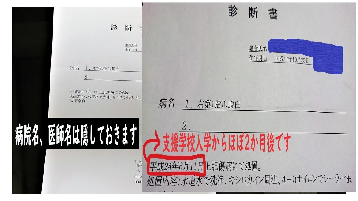 f:id:yamamomokobaru:20200716154307j:plain