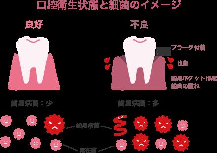 f:id:yamatatsu-kun:20171109083956p:plain