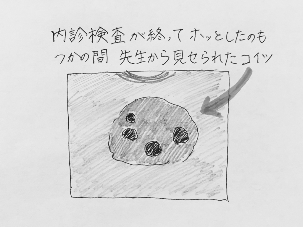 f:id:yamato0709:20180812100804j:plain