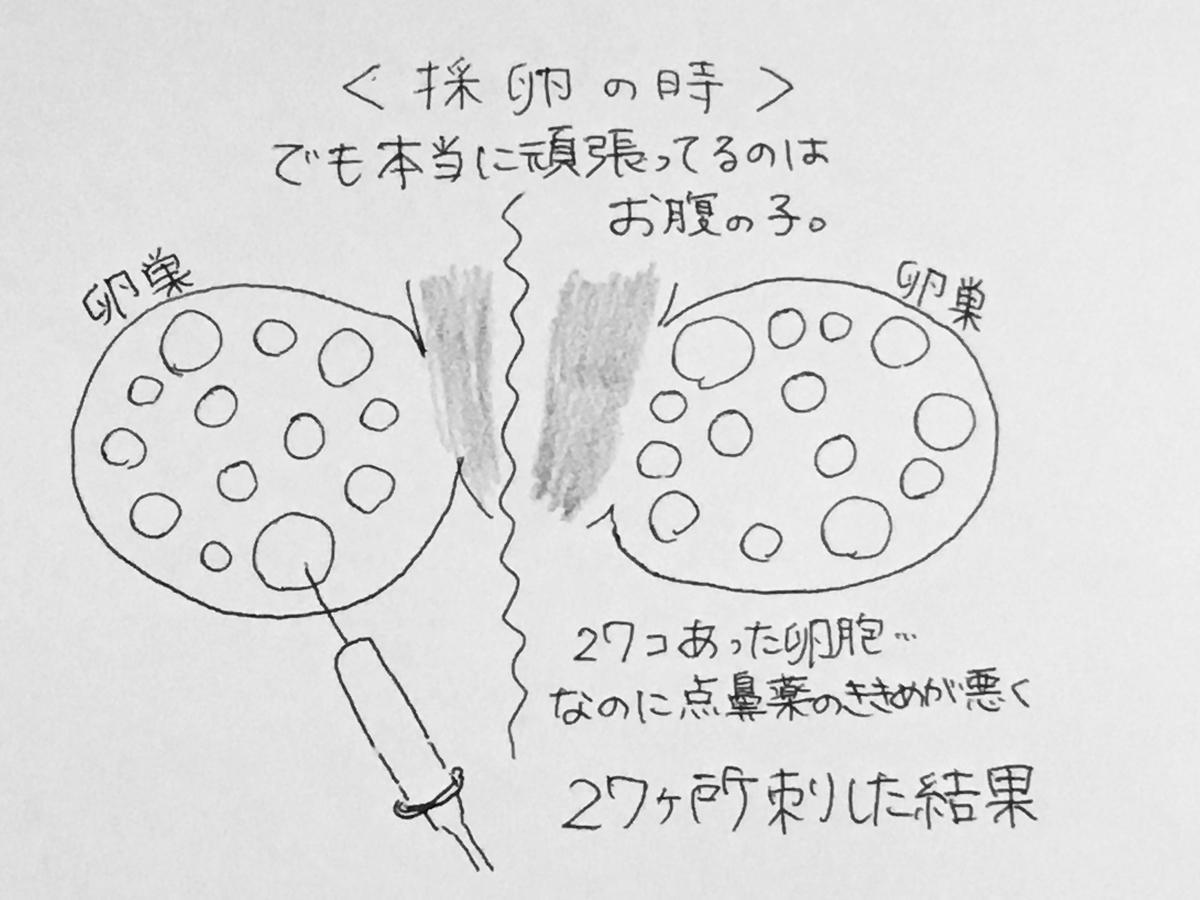 f:id:yamato0709:20190405180303j:plain