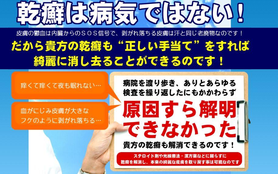 f:id:yamazakura77777:20170227001050j:plain