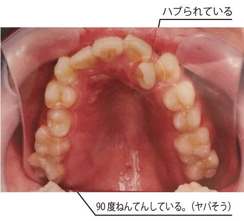 f:id:yasu66666:20170426001603j:plain