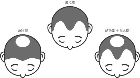 f:id:yasuhiro-usuge:20181026100406p:plain
