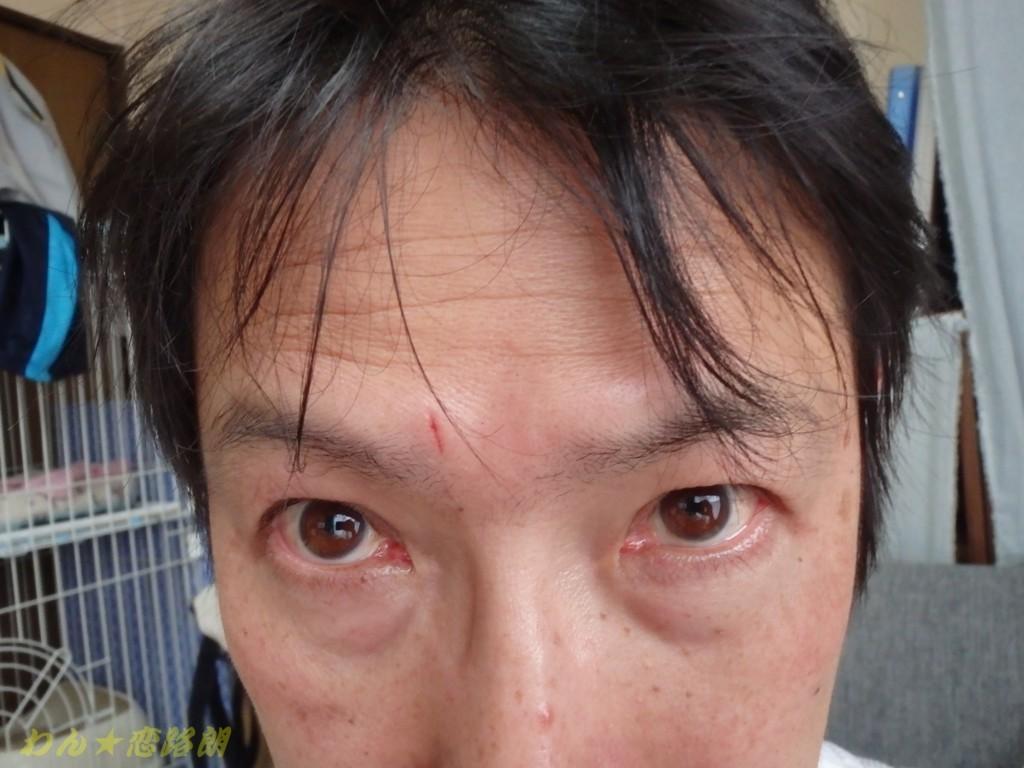 f:id:yasukazu01:20180406174319j:plain