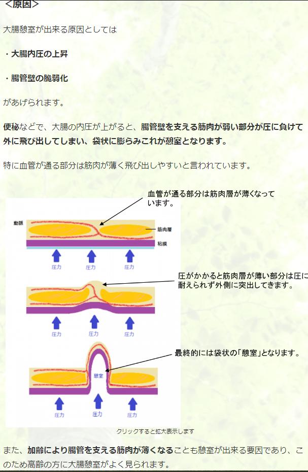 f:id:yasukazu01:20191116194550p:plain