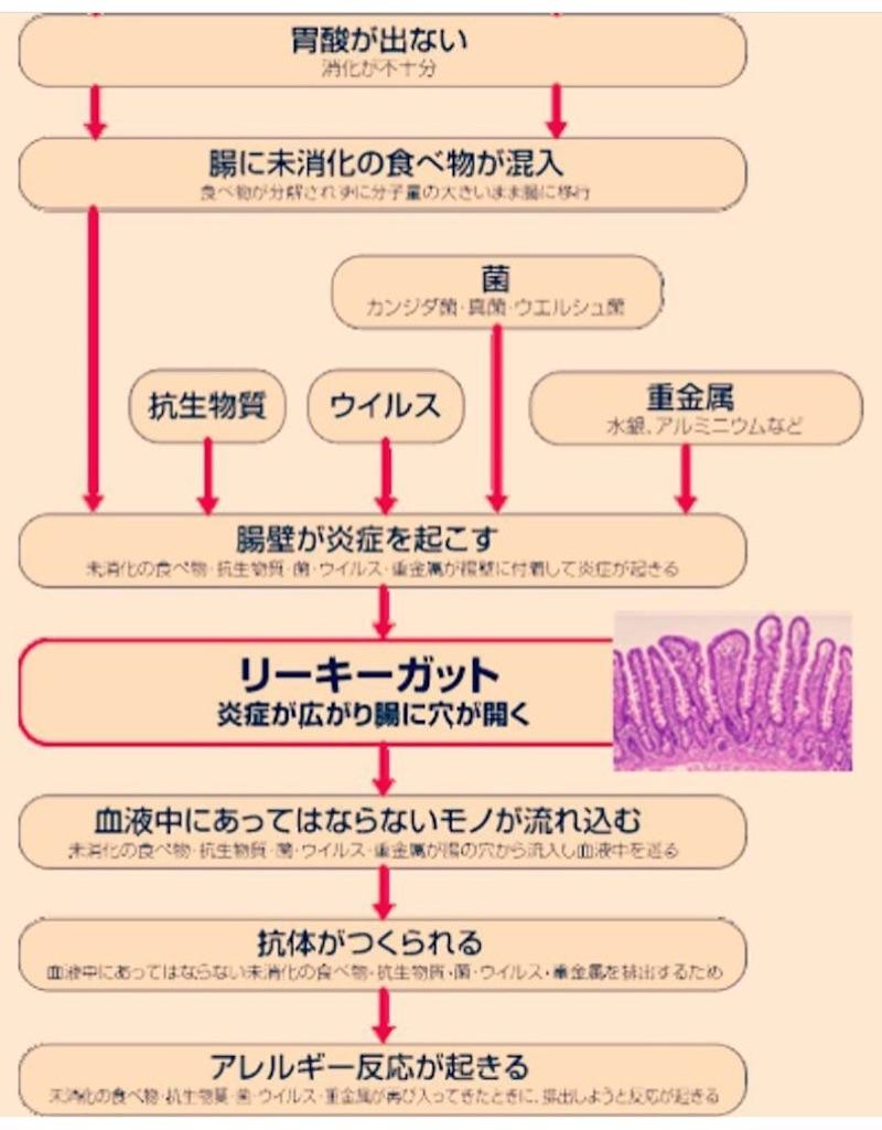 f:id:yasukoro1986227:20161028223414j:image