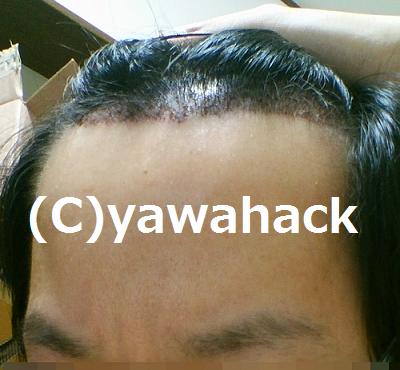 f:id:yawato9614:20160812070303p:plain