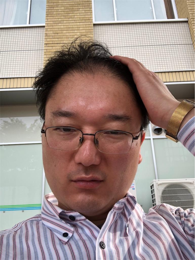 f:id:yhoujou172:20180501094254j:image
