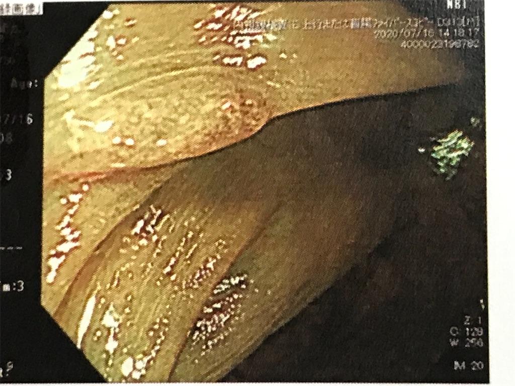f:id:yokohamamiuken:20200729181355j:image
