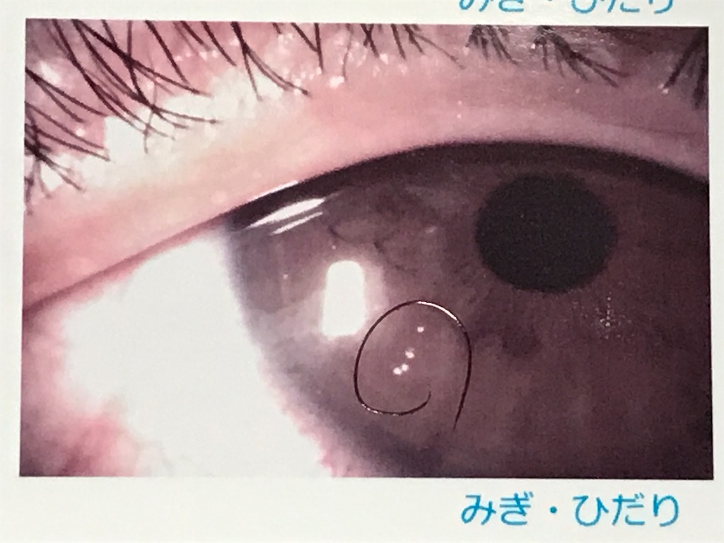 f:id:yokohamamiuken:20200806163246j:image