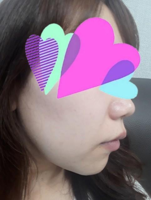 f:id:yono0610:20190517194414j:image