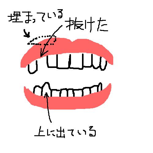 f:id:yorimichi_ticket:20160214183848p:plain