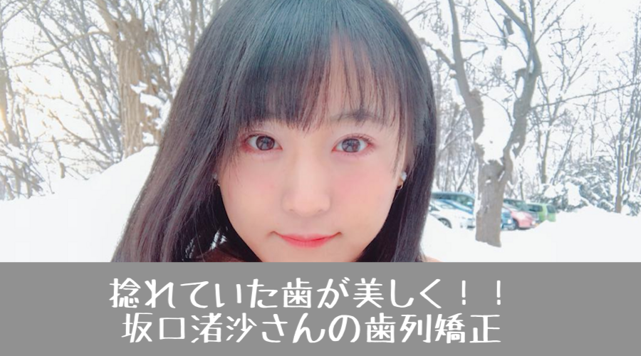 f:id:yorimichi_ticket:20180221142803p:plain