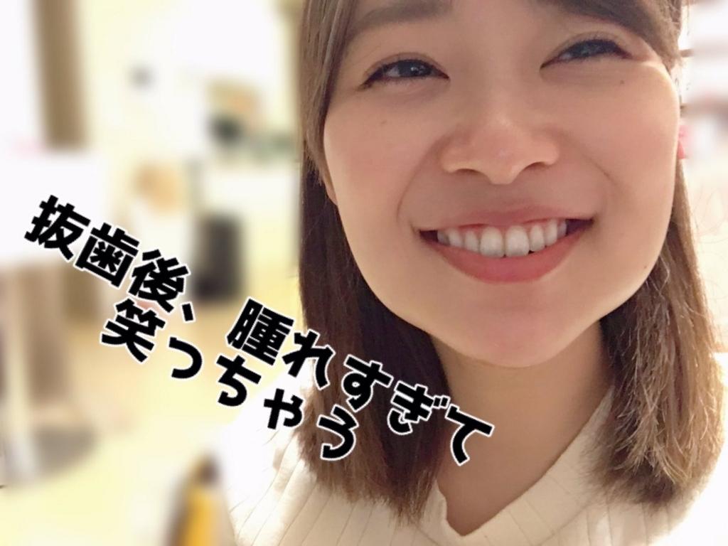 f:id:yorimichi_ticket:20180224080423j:plain