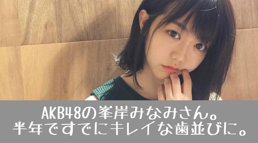 f:id:yorimichi_ticket:20180226223337p:plain