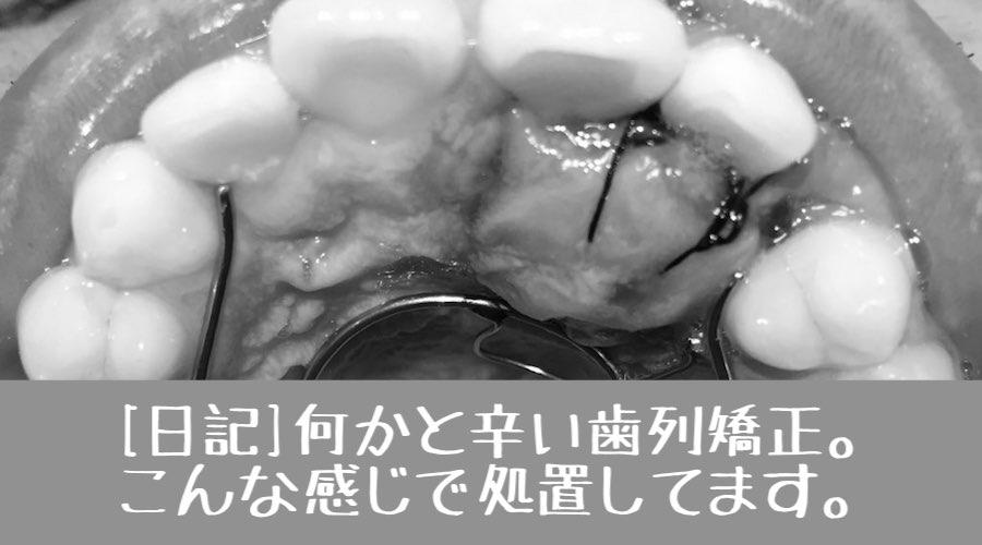 f:id:yorimichi_ticket:20180228211207j:plain