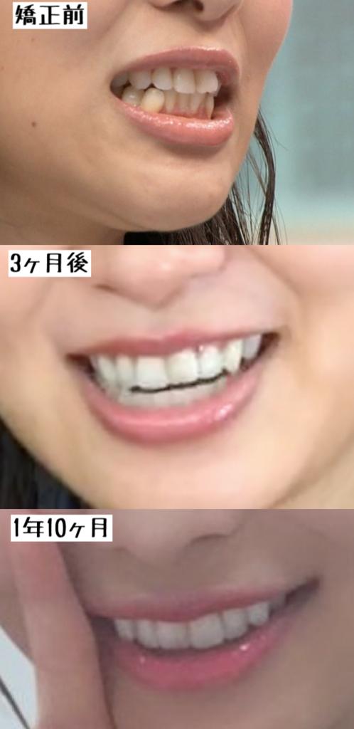 f:id:yorimichi_ticket:20180604060531p:plain