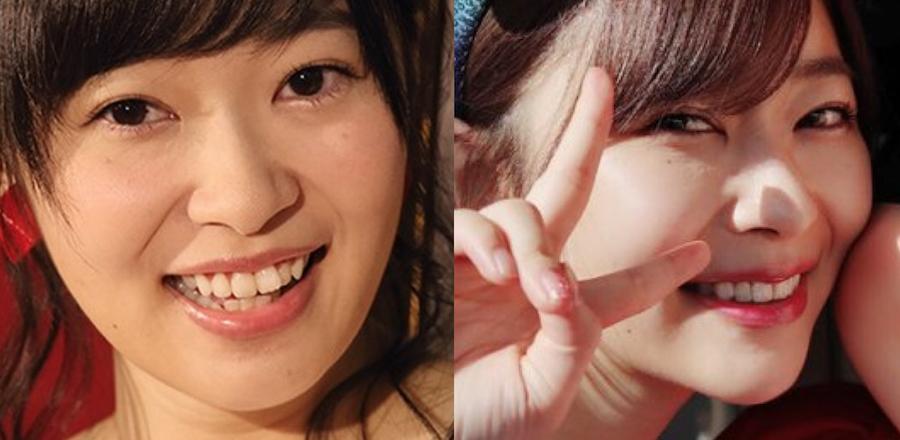 指原莉乃矯正による歯並び