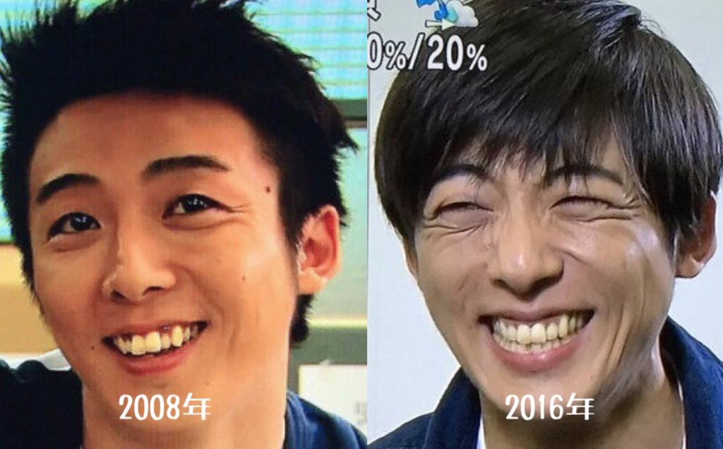 高橋一生矯正前後の歯並びの変化