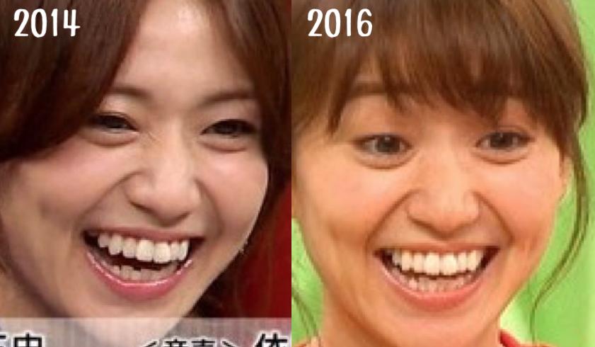 大島優子矯正前後の歯並び