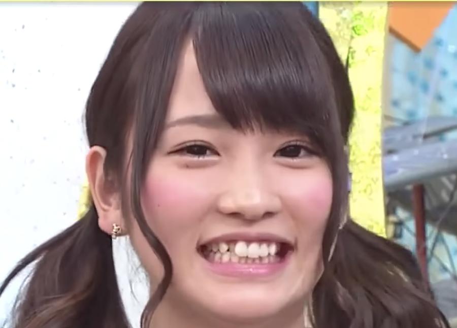 川栄李奈2014年5月の歯並び