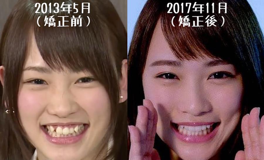 川栄李奈矯正前後の歯並び