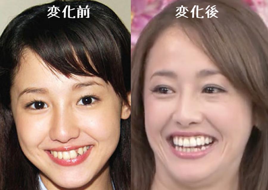 沢尻エリカ歯並びの変化