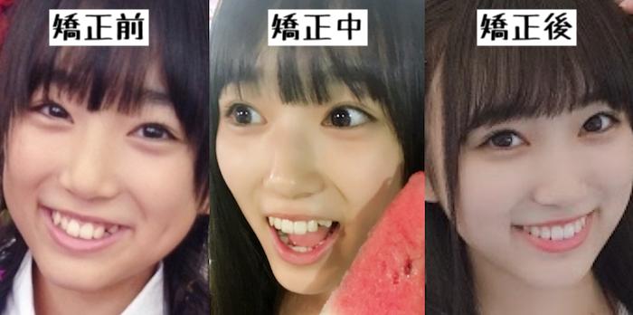 f:id:yorimichi_ticket:20181019153559p:plain