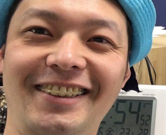 f:id:yorimichi_ticket:20181121052627j:plain