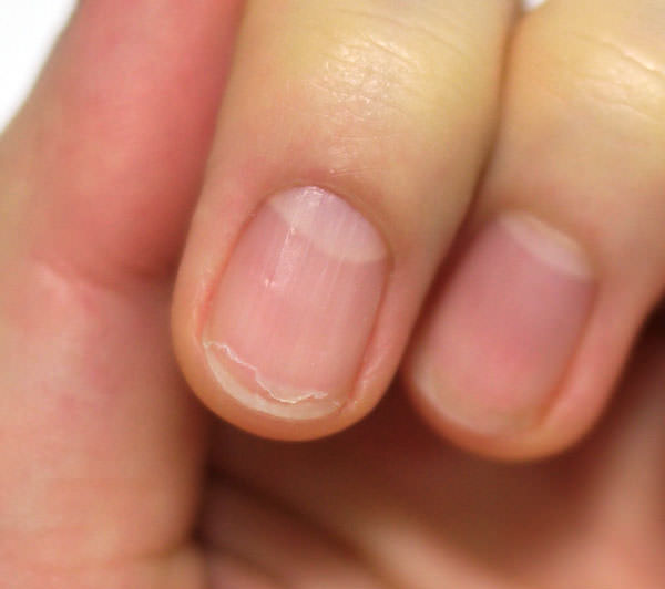 爪が割れている画像
